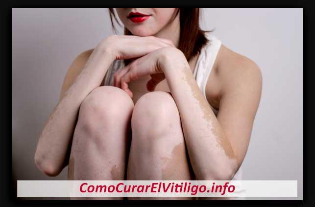 Síntomas del Vitiligo