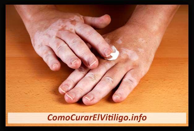 Crema para Vitiligo
