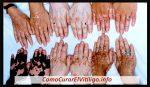 Existen Diferentes Tipos de Vitiligo