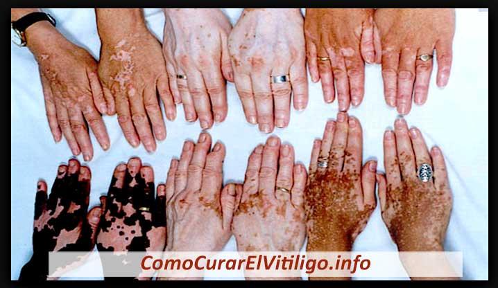 Distintos Tipos de Vitiligo
