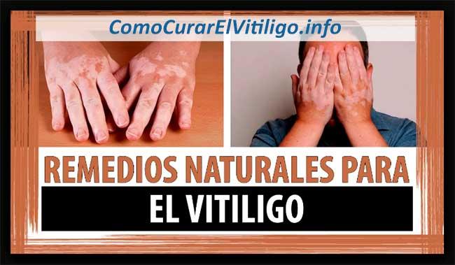 Tratamientos para El Vitiligo