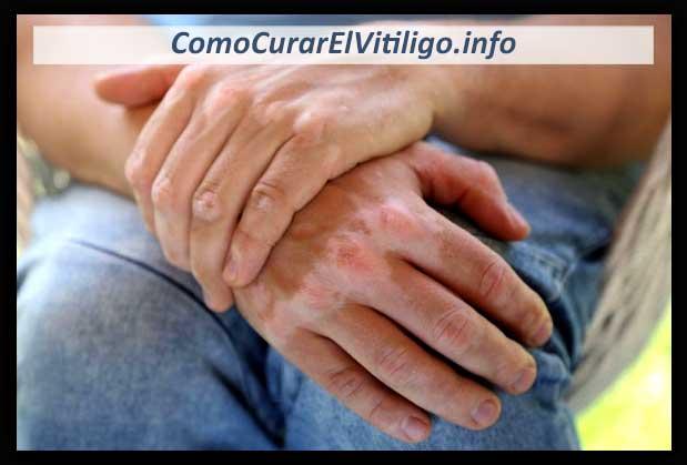 Consejos y Tipspara Tratar El Vitiligo