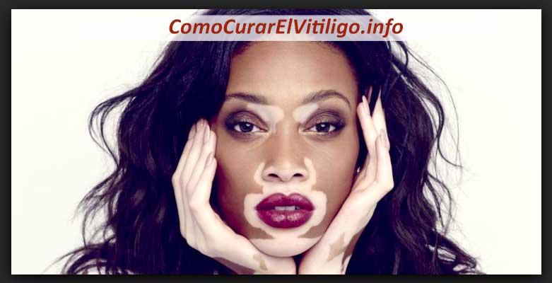Famosos con Vitiligo