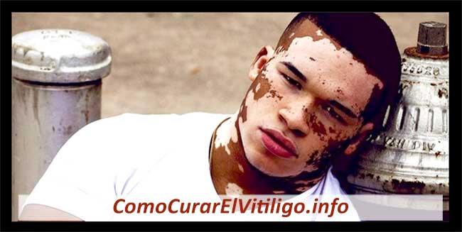 Consecuencias Psicológicas del Vitiligo