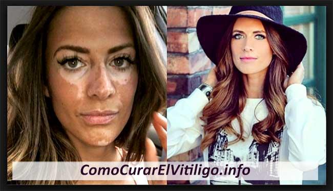 maquillaje para el vitiligo