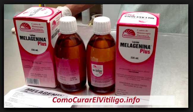 tratamientopara el vitiligoen cuba