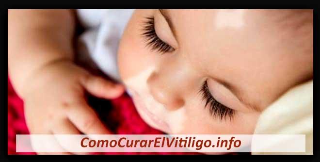 Vitiligo en Recién Nacidos