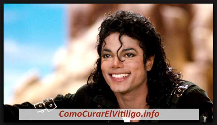 Michael Jackson tenía Vitiligo