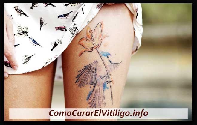Tatuajes y Vitiligo