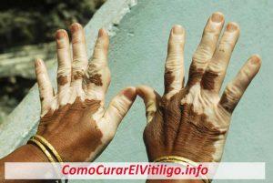 El Vitiligo es Completamente Reversible