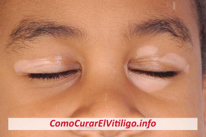 Como Empieza el Vitiligo