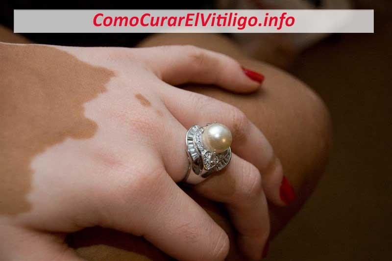Corticoides para Vitiligo