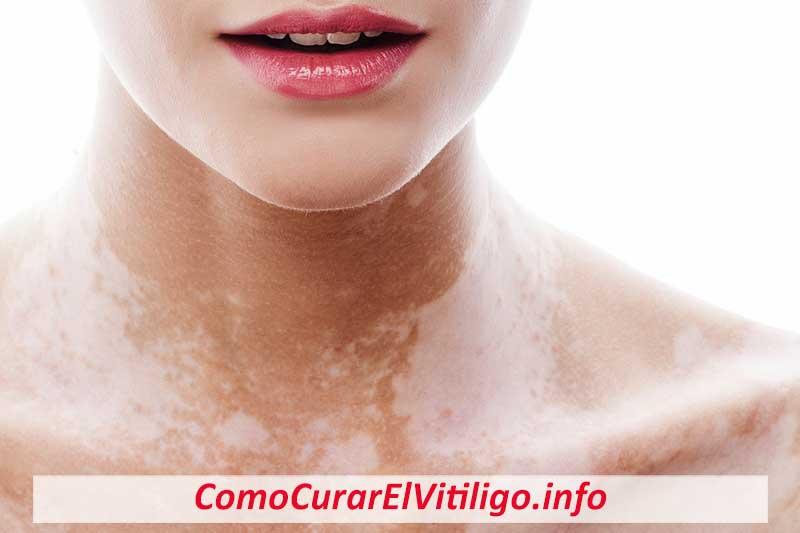 que es el vitiligo