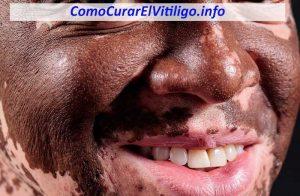 Vitiligo en la Cara