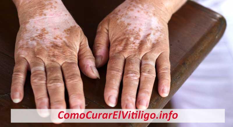 Es Contagioso el Vitiligo?