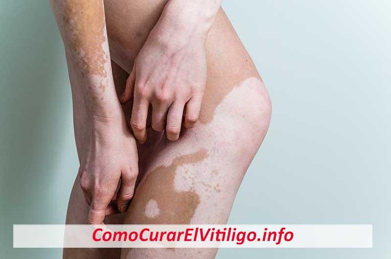 vitiligo genital